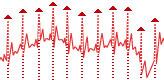 ECG processing — R-peaks detection — Librow — Digital LCD